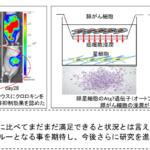 膵がんの転移・浸潤に膵星細胞のオートファジーが関与