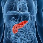 膵臓がん細胞が免疫細胞の攻撃を無力化するメカニズム