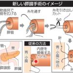 川崎医科大 膵臓手術の新技法開発