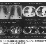 今日の一冊(135)『少量抗がん剤治療』