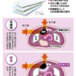 粒子線治療の新兵器