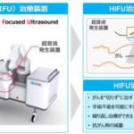 膵臓がんをターゲットにHIFUの新装置を開発