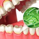がんと歯周病